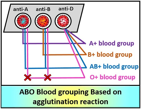 ABO BLOOD TYPIND BASED ON AGGLUTINATION REACTION