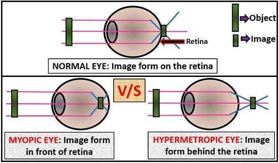 diagram of myopia and hypermetropia