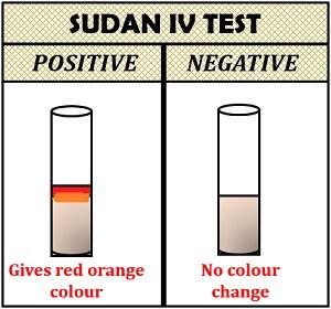 sudan IV test