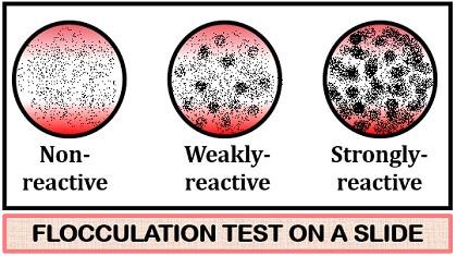 slide flocculation test