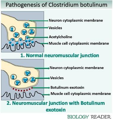 Pathogenesis of Clostridium botulinum