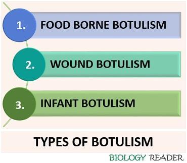 botulism types