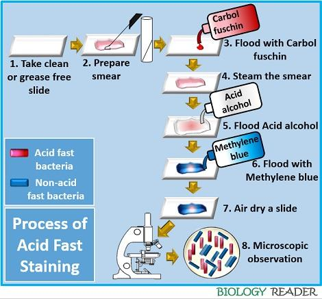 process of acid fast staining