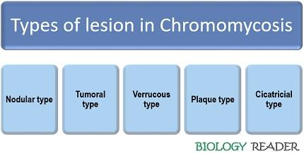 types of lesion in chromomycosis