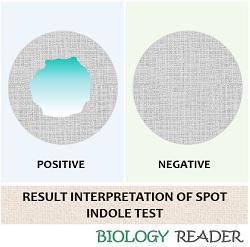 result interpretation of spot tube test