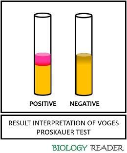 result interpretation of VP test