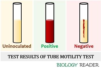 Test results of tube motility test
