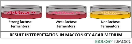 result interpretation in MacConkey agar medium