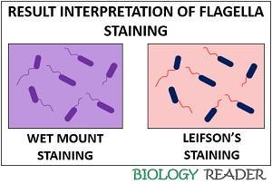 Result of flagella staining